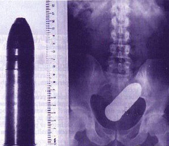 Истории, Приколы: Уникальные рентгеновские снимки посторонних предметов в теле человека